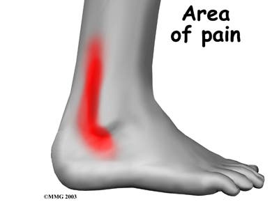 ankle_peroneal_tendinitis_symptoms01