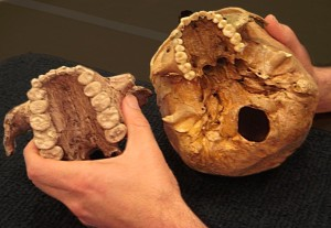Scientists now conclude that The casts of two palates demonstrates the large size of the teeth of Paranthropus boisei (left), long time considered to crack nuts - scientists now conclude that Paranthropus boisei actually chewed grasses instead.Paranthropus boisei actually chewed grasses instead.