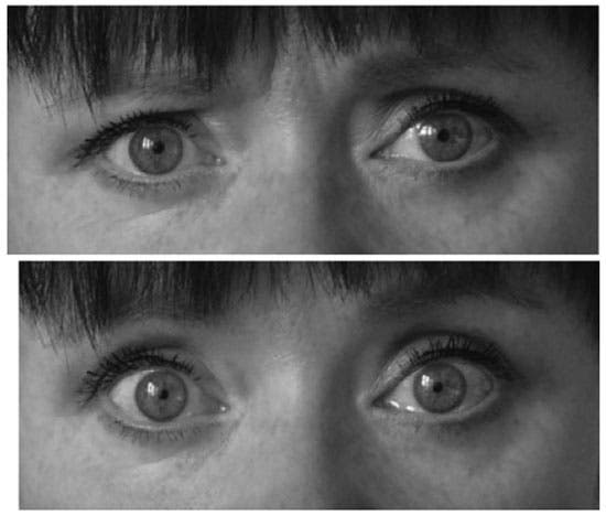 Normal eyes (above), and and glazed eyes (below). (Credit: Academy of Finland)