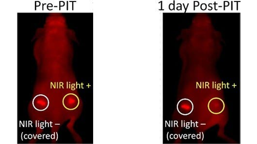 New treatment kills cancer cells with near infrared light