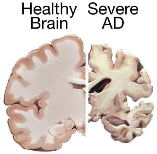 Healthy Brain vs Alzheimer's Disease