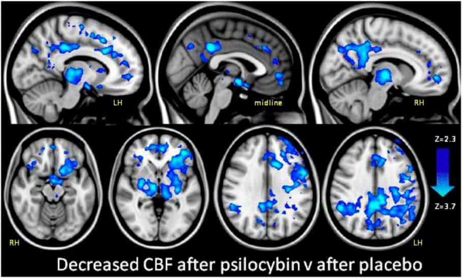 Decreased cerebral blood flow (CBF) after psilocybin imaged by fMRI
