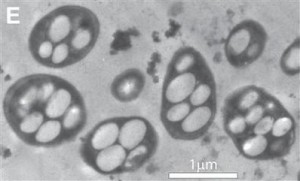 transmission electron micrograph of the bacterium strain GFAJ-1+As/-P GFAJ-1 shows internal vacuole-like structures in an undated photograph released by NASA