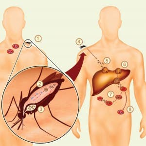 Malaria Image