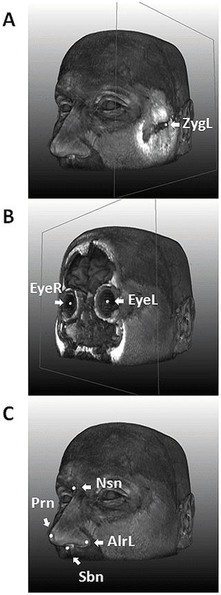 MRI of one of the authors (MK) is used for illustration. A, with the landmark for left zygion (ZygL) highlighted, where a clipping plane was used to uncover the bone; B, with the landmarks for left (EyeL) and right pupils (EyeR) highlighted, where a clipping plane was used to uncover the vitreous humor; C, with the four nasal landmarks highlighted, including the left alare, nasion (Nsn), pronasale (Prn), and subnasale (Sbn).