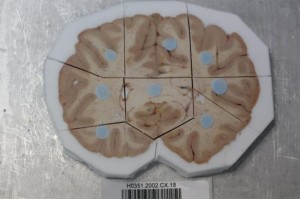 One of the human brain slices. (c) Allen Institute for Brain Science