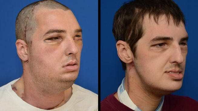 Facial transplant recipient Richard Lee Norris immediately after the operation (left), and seven months later (right).