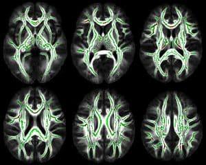 MRI scan brain white matter