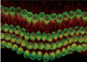 sensory hair cells