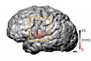 Electrodes in an epilepsy patient's brain (shown here in magnetic resonance imaging) revealed strikingly different patterns of activity in the articulation of consonants and vowels. (c) Nature