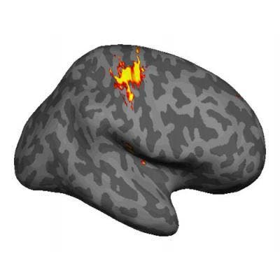 An amputee suffering from phantom pain maintains a representation of the phantom hand in their brain. (c) Oxford University