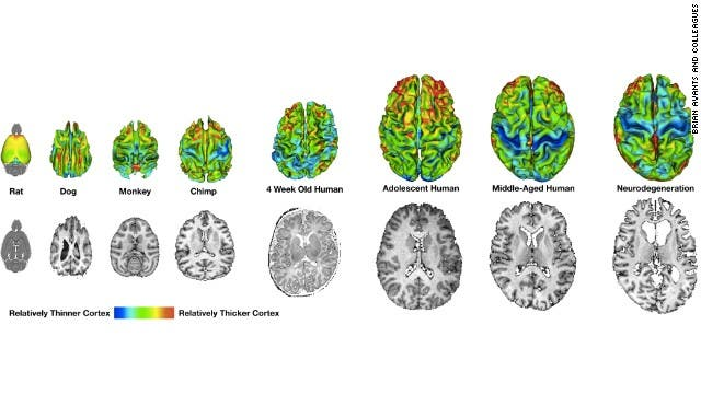 This image, compiled using data from multiple researchers, shows how cortical thickness varies across species. In humans, on the right, there are noticeable changes as a person ages.