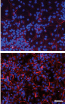 Evidence that RMST is necessary for neuronal differentiation: overexpression of RMST led to a 3-fold increase in neuron-specific beta tubulin (bottom) compared to control (top). Scale bars represent 100 microns. (Credit: Shi-Yan Ng et al./Molecular Cell)