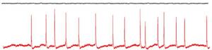 Flat line and Nu-complex signals (credit: Daniel Kroeger et al./PLoS ONE)