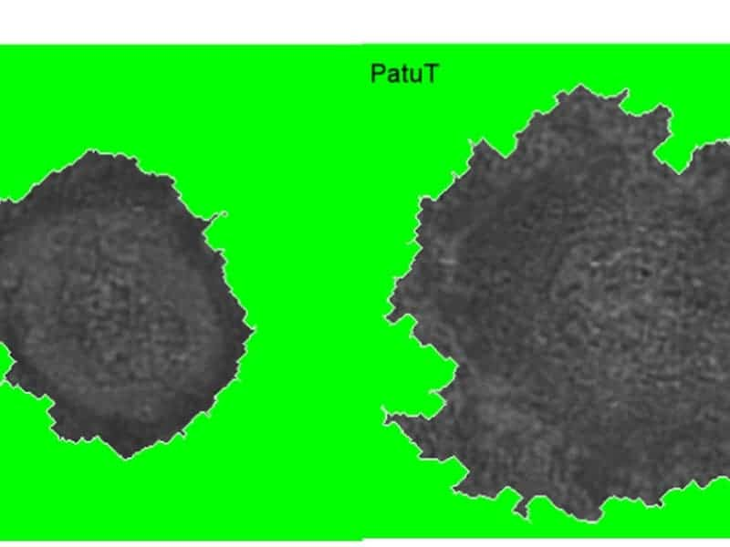 The cell on the right displays a greater degree of fractality than that on the left, which is an indication of its stronger aggressiveness. © MPI for Intelligent Systems