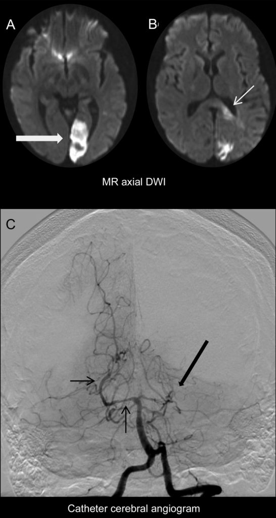 (A, B) Echoplanar axial diffusion-weighted MRI (DWI) shows left posterior cerebral artery territory diffusion restriction including the left visual cortex (large arrow) and the splenium of the corpus callosum (small arrow). (C) Catheter angiogram, left vertebral artery injection, anterior posterior projection shows occlusion of the left posterior cerebral artery (large arrow) and constrictions and dilations of the right posterior cerebral artery consistent with probable primary angiitis of the CNS. (c) Neurology