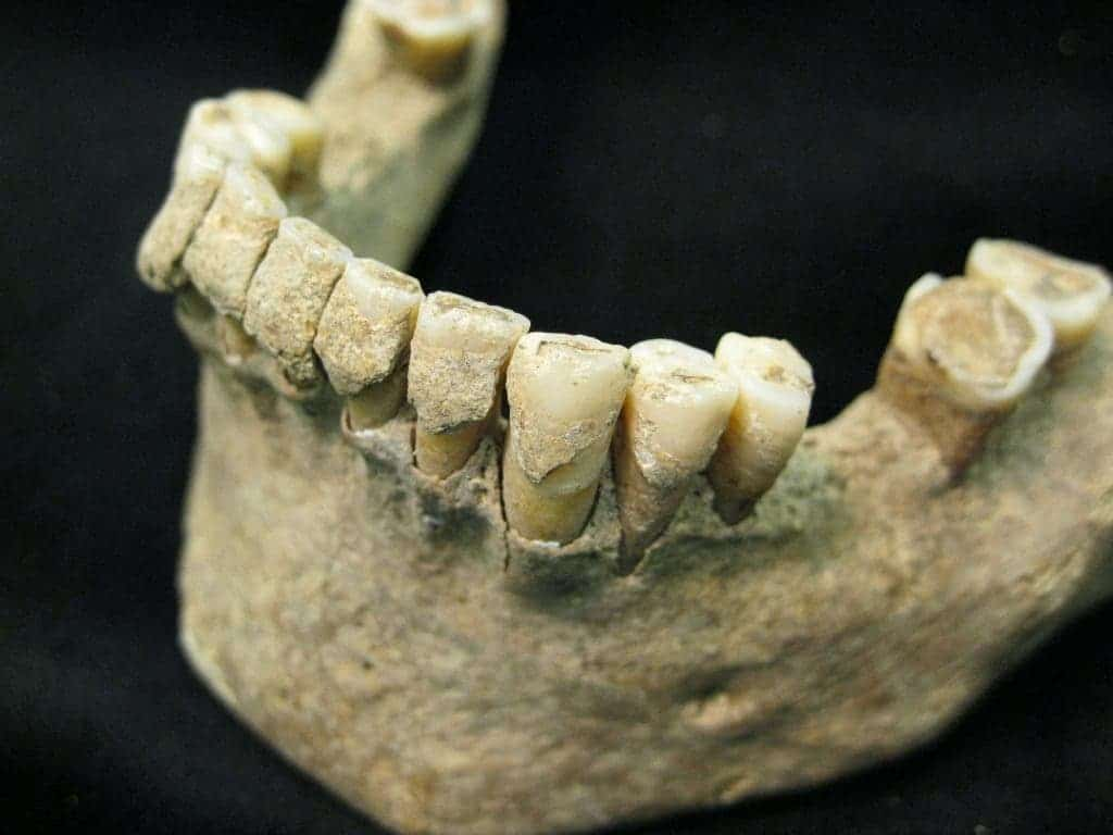 Fossilised dental plaque (calculus) on the teeth of a middle-aged man from the Medieval site of Dalheim, Germany, ca. AD 1100. Photo credit: Christina Warinner.