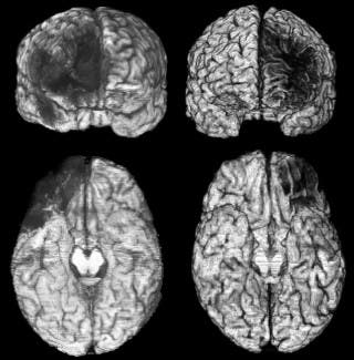 Damage to the vmPFC shows up as black areas in two patients' brain scans. In both patients, the damage occurred prior to age 18. Images courtesy of the UI Department of Neurology.