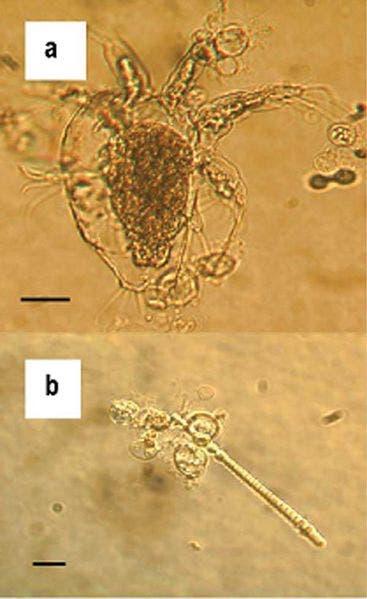 Chytrid fungus, Batrachochytrium dendrobatidis.