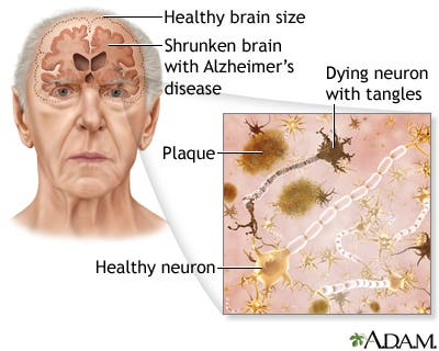 Effects of Alzheimer's. Image: healthbenefitstimes.com