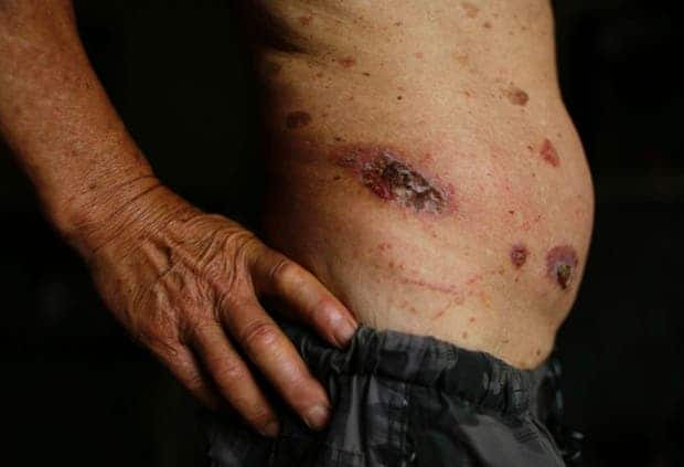 Skin ulcers are seen on 69-year-old Gong Zhaoyuan's torso. China has many so-called cancer villages, blamed by residents on industrial pollution.