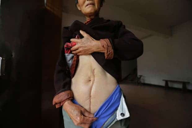 Wen Jin'e, 65, shows a scar, the legacy of an operation to treat cervical cancer. Wen got 10,000 yuan ($1,600) from the local government for their cancer, but it was not even enough for one round of chemotherapy and radiotherapy