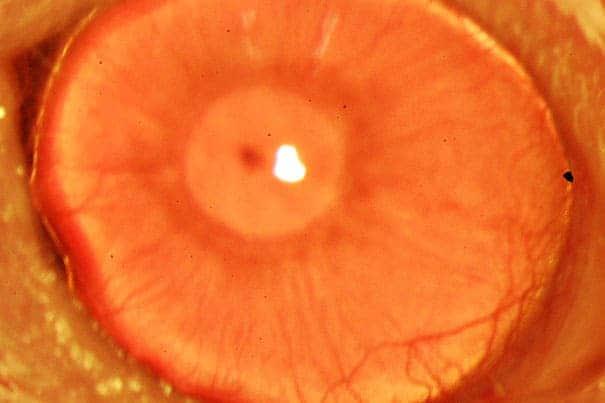 restored_cornea