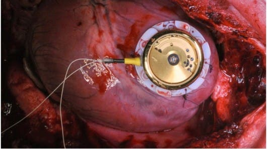 pacemaker_device