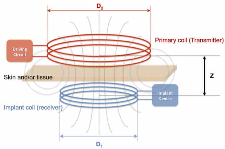 Schematics of induction coupling between the primary coil and the implanted receiver coil for wireless power delivery (credit: Tufts University)