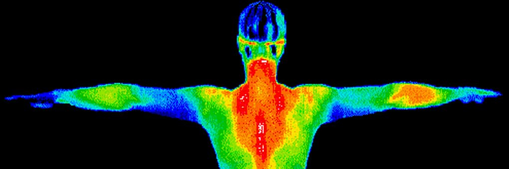 A thermal image visually represents the difference in temperature across various surfaces on a body. Image: Wikimedia