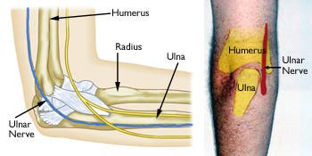 The ulnar nerve runs behind the elbow on the inside of the arm. Credit: Orthoinfo