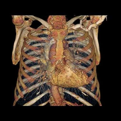The rib cage, the heart and the chest cavity. The Revolution CT can image the heart in a single heartbeat.