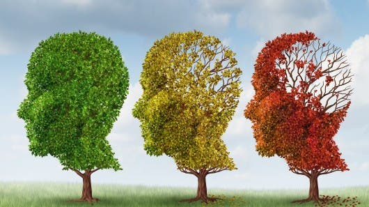 http://images.gizmag.com/hero/alzheimers-dementia-cure-yale-amyloid-treatment-9.jpg