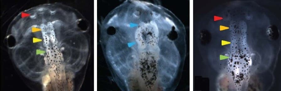 Left: normal tadpole brain. Center: injections with a suppressor of neural induction (Notch) caused a significantly elevated incidence of malformed brain in tadpole embryos, including near complete loss of forebrain/olfactory bulbs, and malformed midbrain and eyes. The embryos also exhibited loss of the normal voltage pattern. Right: Restoring hyperpolarization (normal voltage pattern) restored normal brain morphology, with well-formed forebrain/olfactory bulb, midbrain, and hindbrain. (credit: Vaibhav P. Pai et al./ The Journal of Neuroscience)