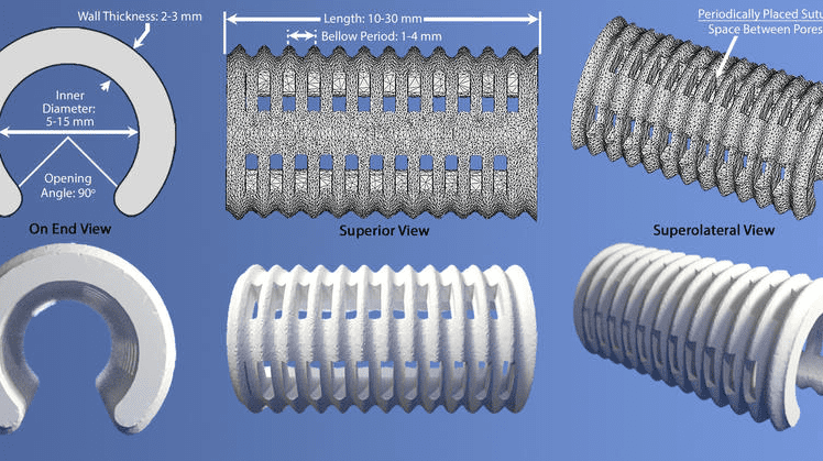 Two renderings of the tracheobronchial splint, which is placed over the collapsed airway. The design parameters (inner diameter, length, wall thickness, and number and spacing of suture holes) were adjusted according to the patient's specific anatomy. (Morrison et al., Science Translational Medicine)