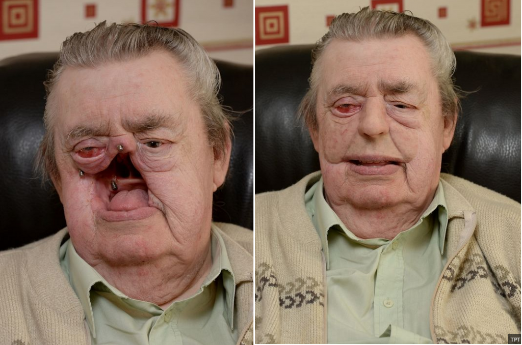 After cancer ate out his face, this 74-year-old now uses a ...