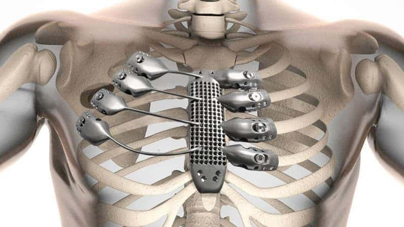 The implant attaches directly to the bone by eight clamps. Image: CSIRO