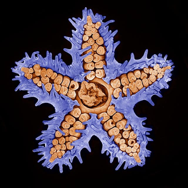 7TH PLACE, Evan Darling. Starfish imaged using confocal microscopy (10x)
