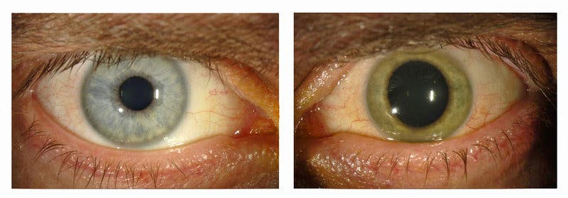 Dr. Ian Crozier's normal blue eyes (left), and transformed green (right). The rest of Crozier's body was Ebola free, but his eyes were teeming with the virus. Image: Emory Eye Center
