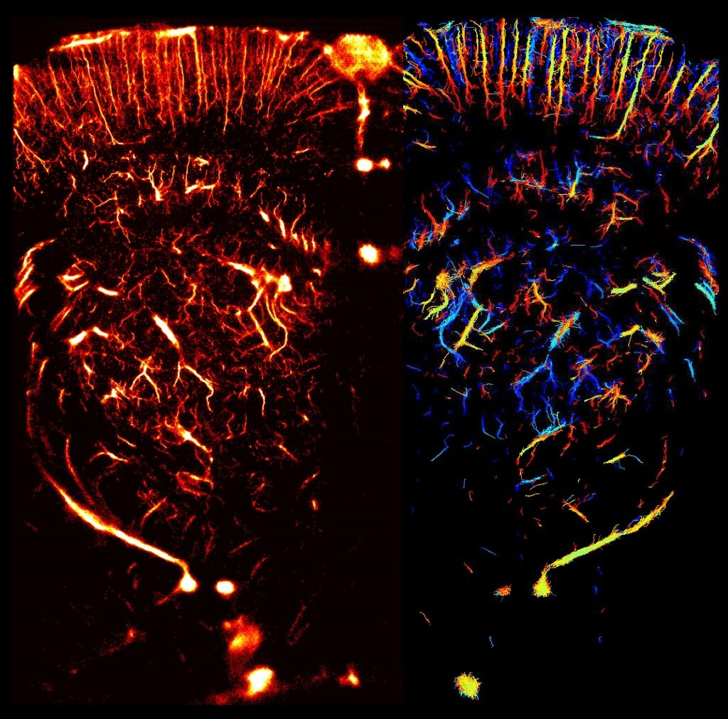 Image of the whole brain vasculature at microscopic resolution in the live rat using ultrafast Ultrasound Localization Microscopy: Local density of intravascular microbubbles in the right hemisphere, quantitative estimation of blood flow speed in the left hemisphere. Credit: ESPCI/INSERM/CNRS