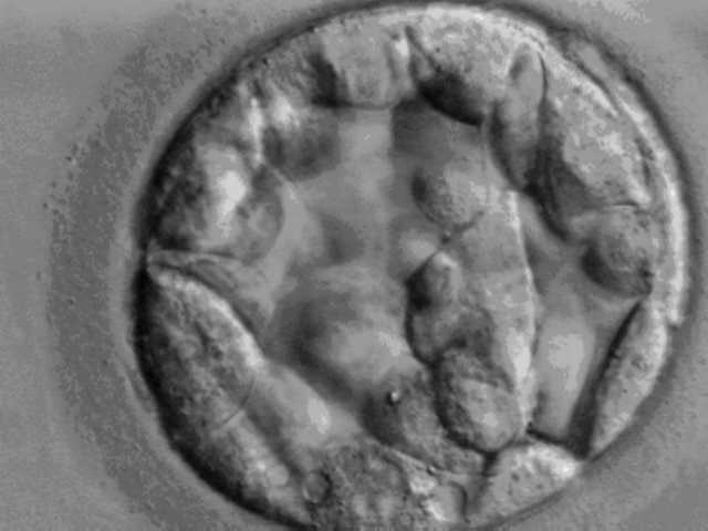 Blastocyst - day 5. (Credit: Ekem at English Wikipedia. Transferred from en.wikipedia to Commons.)