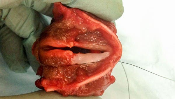 The vocal cord tissue grown in the lab at the University of Wisconsin School of Medicine and Public Health in Madison.