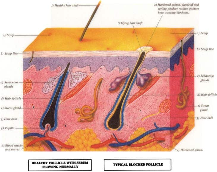 HairFollicle_Large
