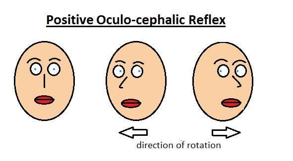 Positive_oculocephalic_reflex