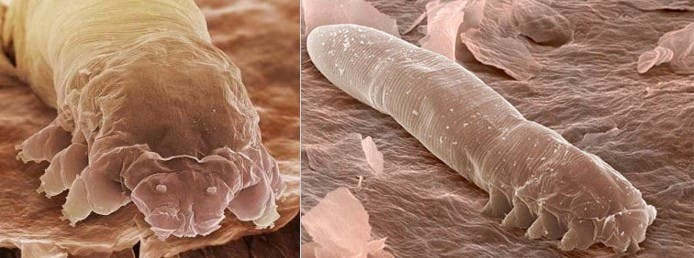 Demodex folliculorum and Demodex brevisare. Image: Biology Forums