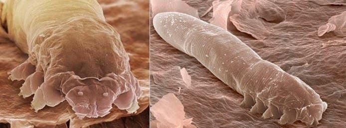 Demodex folliculorum and Demodex brevisare. Image: Biology Forums