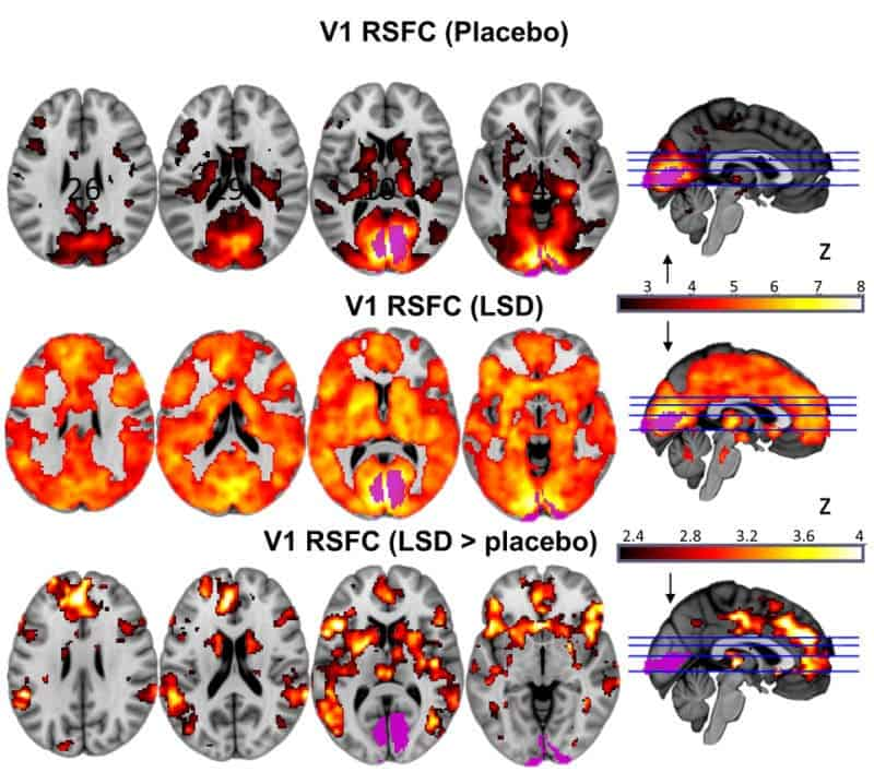 Top to botom: primary visual cortex communication (placebo); then on LSD; finally, the difference between placebo and LSD. Credit: Imperial College London