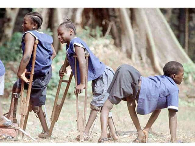 Polio victims from Nigeria.