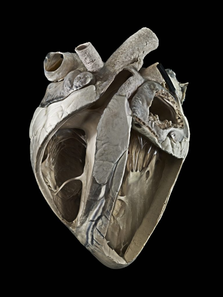 Cow Heart. Image credits Michael Frank / Royal Veterinary College