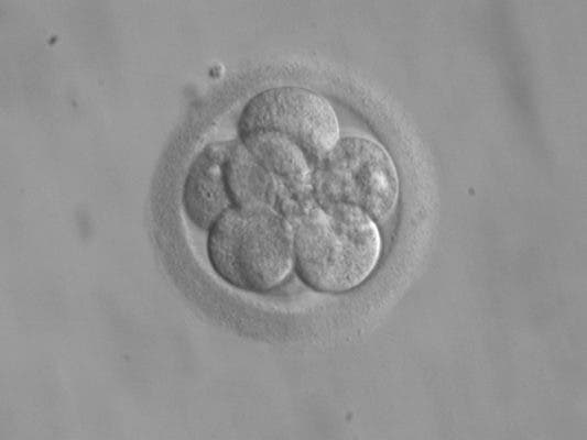 An eight-cell embryo. Credit: Wikimedia Commons